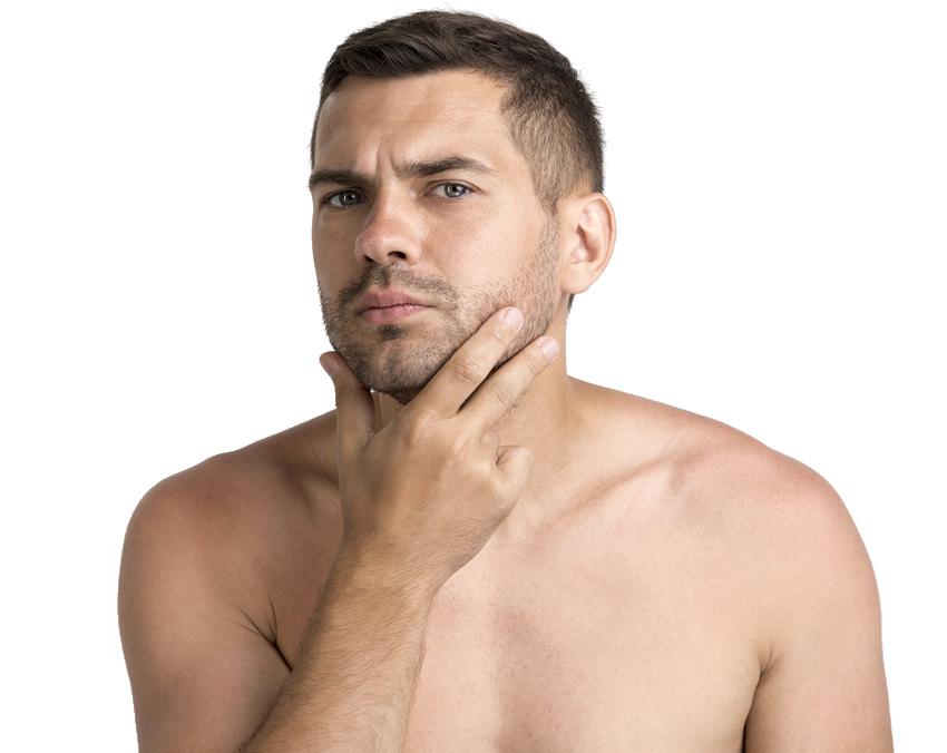 Depilação a Laser - Desenho Barba 10 Sessões
